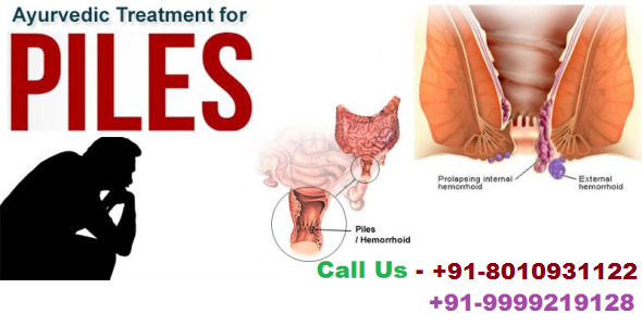 Piles Ladies Doctor in Delhi | Ladies Doctor for Piles : 8010931122