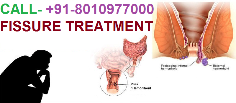 Fissure treatment in Kotla Mubarakpur – 8010977000