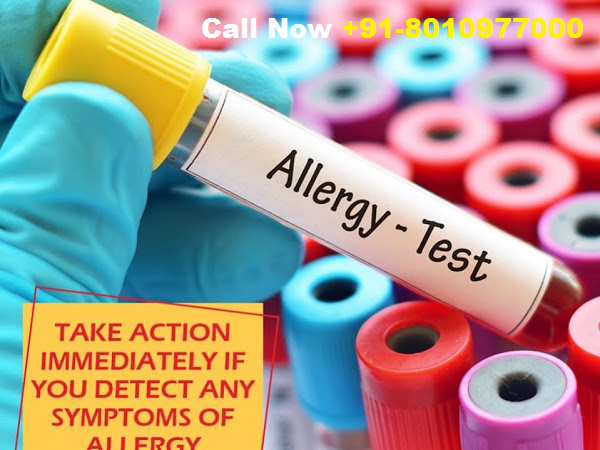 Accurate HIV Test at Home in Delhi | +91-8010977000