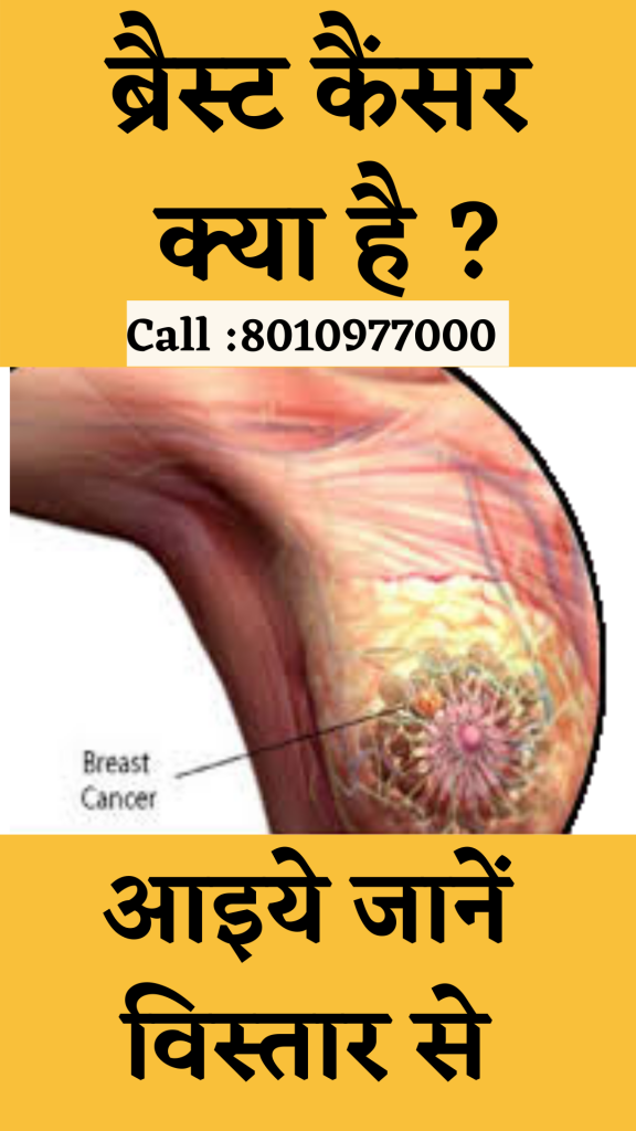 Treatment for breast cancer